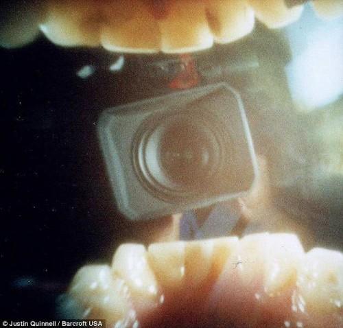 口の中のカメラを撮影するカメラを撮影 参照  ピンホールカメラで撮影された「口の中から見える世界